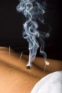 acupunctuur hoofdpijn ijmuiden